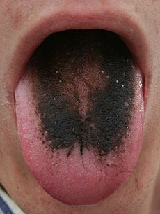 hairy-tongue